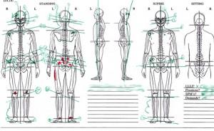 Measuring Leg Length Inequalities